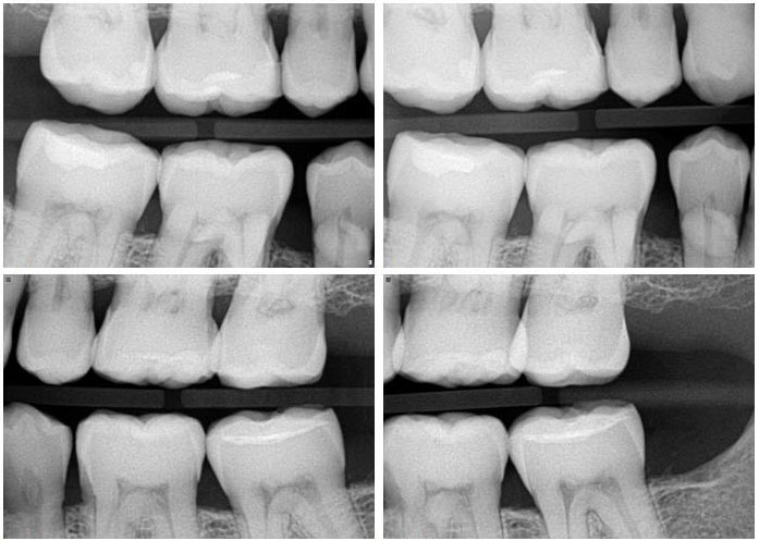 X-rays are an important part of a thorough dental exam. image