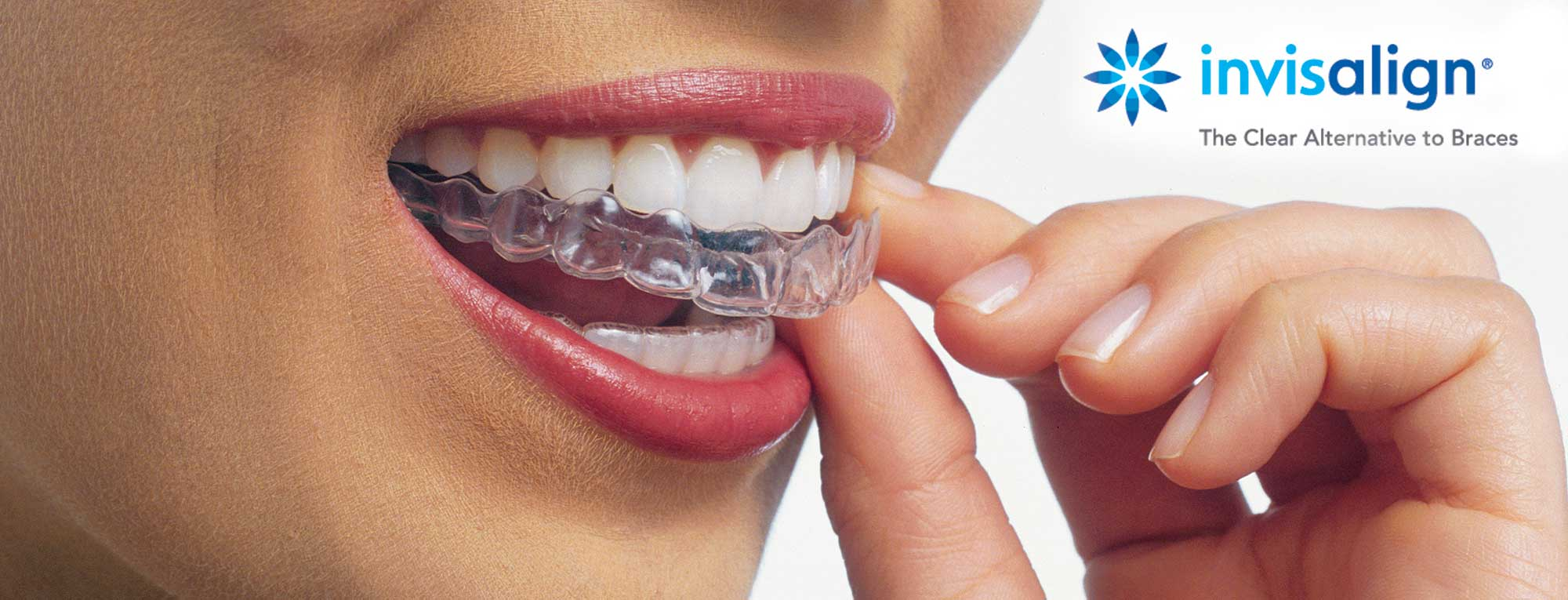 Get a Beautiful Smile Without Braces image