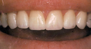 Enhanced Smile Recontouring