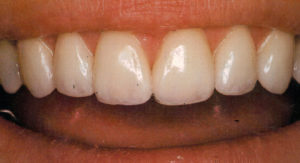 Oval Smile Recontouring
