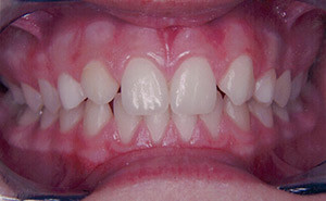 Before Dentist Visit