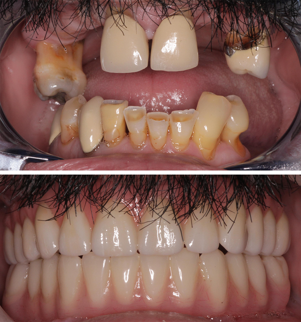 New beautiful, strong and long lasting teeth. image